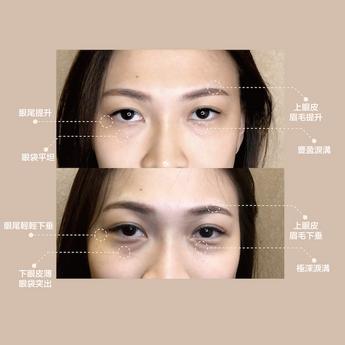 急救SOS逆轉眼齡療程