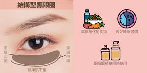 顏色呈黑色,因眼下凹陷或眼袋鬆弛形成陰影。隨著年齡增長,下眼瞼的膠原蛋白自我流失,令下眼瞼凹陷。有些眼睛大輪廓深邃的人也容易有。