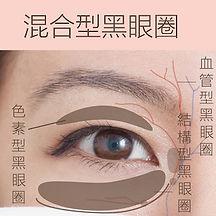 香港激光去混合型黑眼圈療程