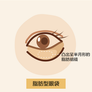 眼下凸出呈半月形的脂肪組織,延伸至眼尾出現的特徵/原因