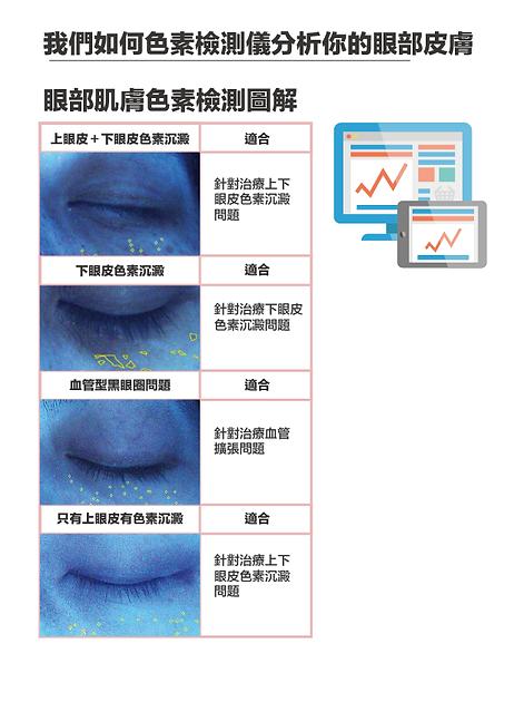 專業儀器檢測你的眼部問題_工作區域 1 複本.png