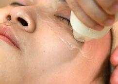 改善結構型黑眼圈療程3.jpg