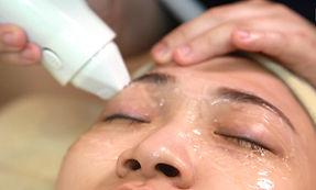 改善結構型黑眼圈療程2.jpg