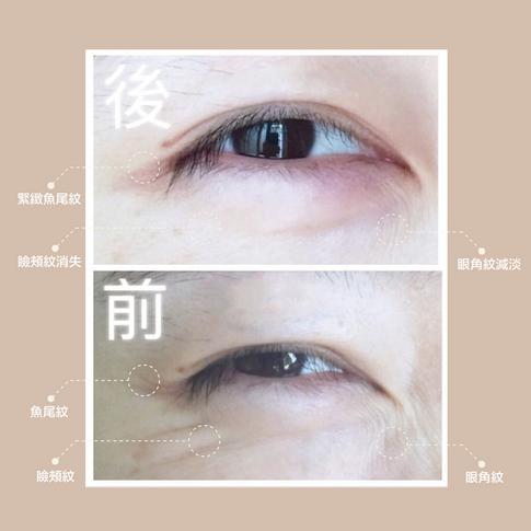可改善三大類型的黑眼圈