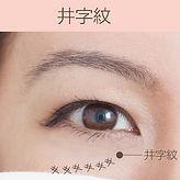去眼紋類型井字紋