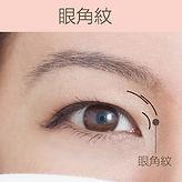 去眼紋類型眼角紋