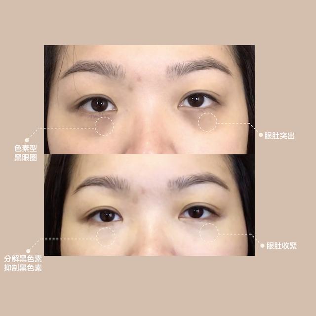 改善眼部周邊紋理