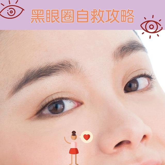 淚溝眼袋黑眼圈眼紋療程 血管型黑眼圈 色素型黑眼圈 結構型黑眼圈 令雙眼重拾光彩