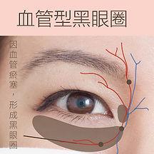 香港激光去血管型黑眼圈療程