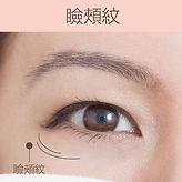 去眼紋類型瞼頰紋