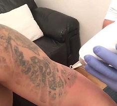 Laser tattoo removal work in progress