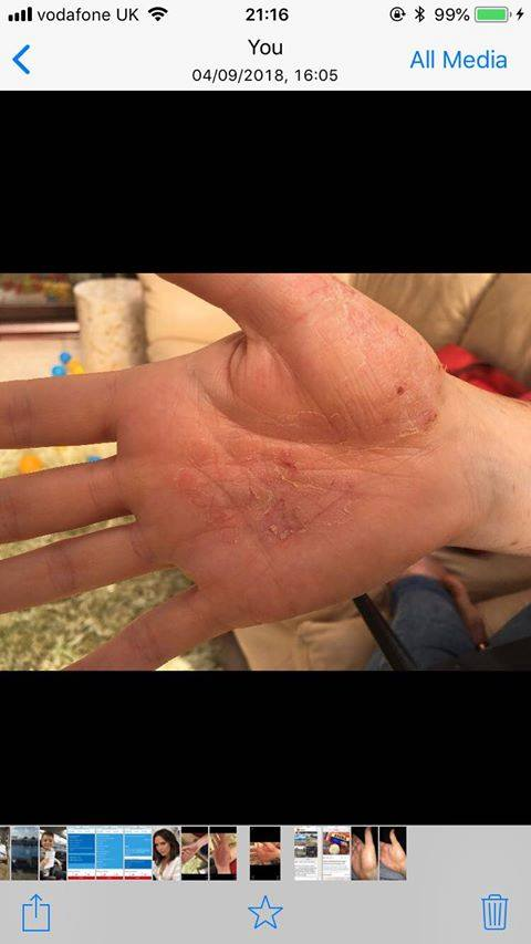 Toni McCabe skin condition on hand