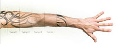 Laser tattoo removal fade stages, Laser-lite