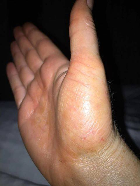 Toni McCabe skin condition clearing afte
