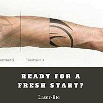 Ready for a fresh start? Laser tattoo removal stages