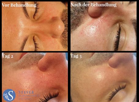 B-Peel Behandlung bei leichter Neurodermitis