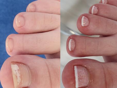 Weiße Flecken auf den Nägeln?