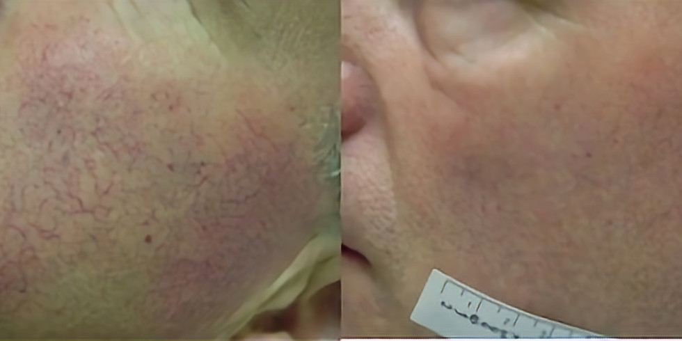 Cursus Energist VPL - Skin Rejuvenation