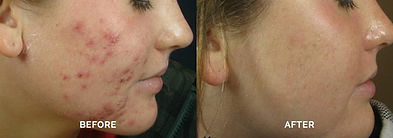 omnilux-led-anti-acne-therapy-before-and