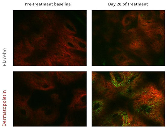 Studie 2 - collageen en elastine toename