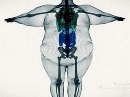 Obezite ile ilgili Araştırma