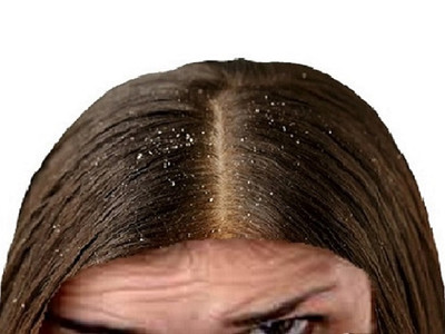 Dandruff removal natural home remedies