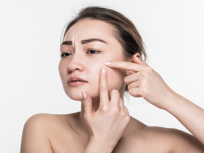 How to remove pimples on the face