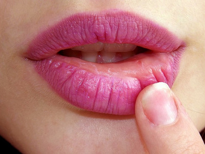 How to protect dry and dead lips