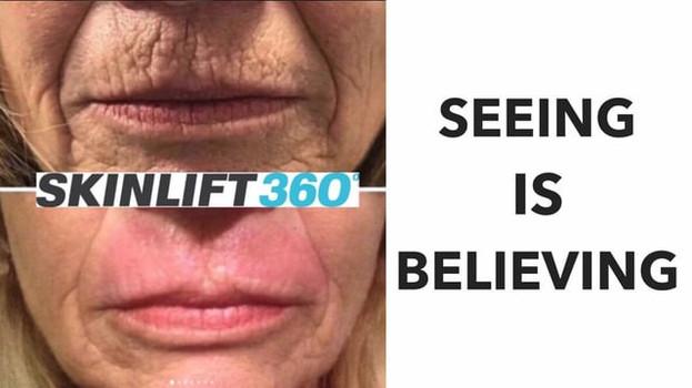 Skinlift 360 video