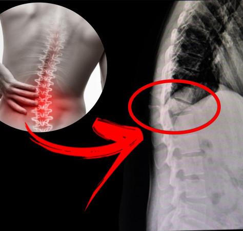 Vidraceiro e serralheiro, saiba como evitar lesões na coluna!