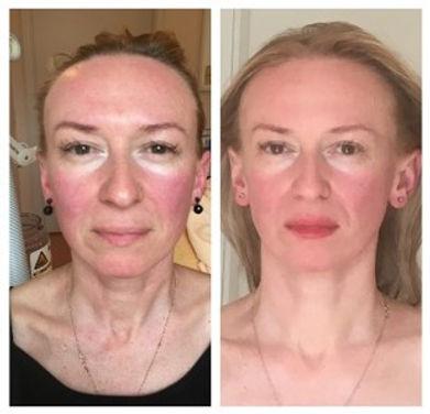 Verjüngung von Hals-Dekolleté-Partie durch Lösen von verhärteter Gesichts- und Nackenmuskulatur
