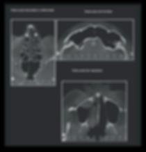 Fotos  3D Odonto X - paranasais 3.png