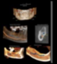 Fotos  3D Odonto X - Implantodontia.png