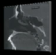 Fotos  3D Odonto X - paranasais 2.png