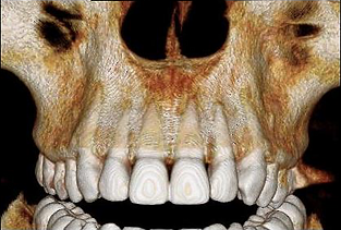 Protocolo Gengival Odonto X.png