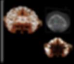 Fotos  3D Odonto X Exame Oclusal.png