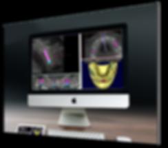 Fotos  3D Odonto X Biotomo.png
