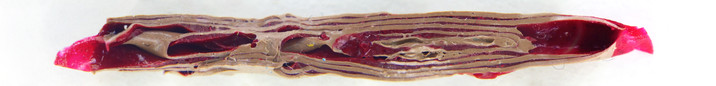 Folded Flesh