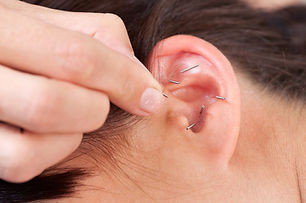 shutterstock_88352239-acupuncture-reszie