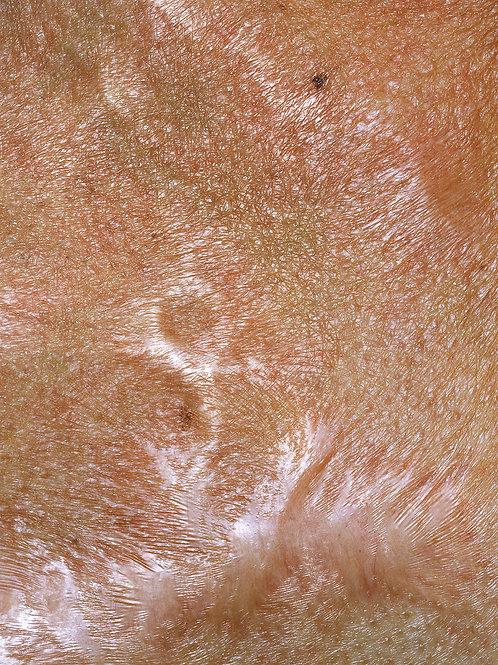 Skin_burned