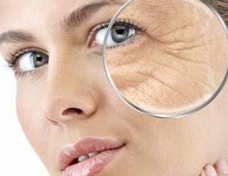 Arrugas - Causas y Sintomas