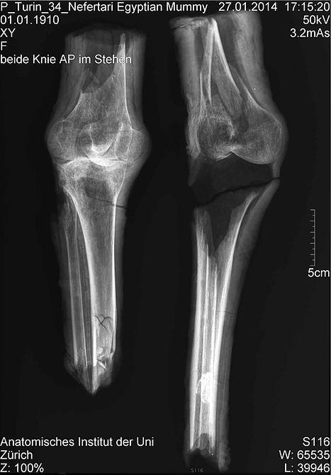 Nefertari, x-ray mummied legs