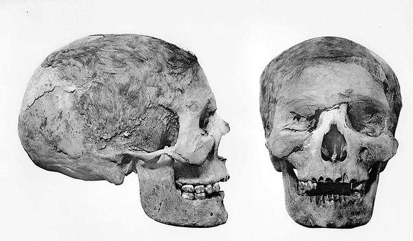 Baqt Schädel einer jungen Frau DT57.C2_v