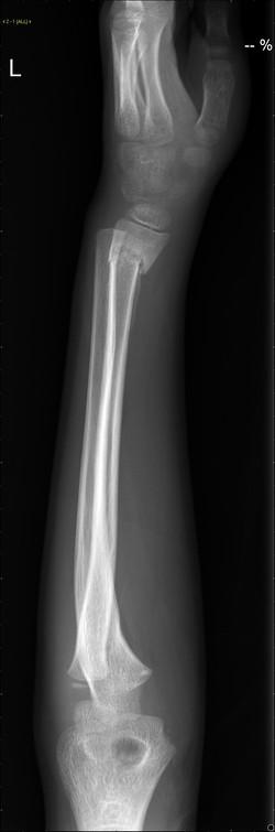 Lt forearm greenstick # distal radius.jp