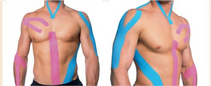 Kinesiology Tape Method at ChiroHealth Integrative Wellness