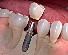 dental implant courses online