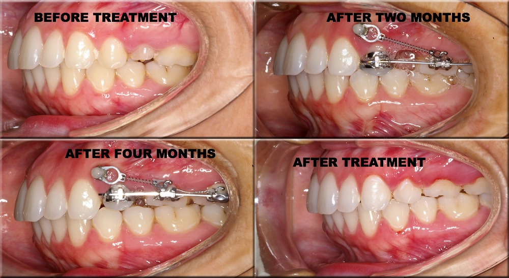 Teeth wiring cost