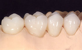 prosthodontics course