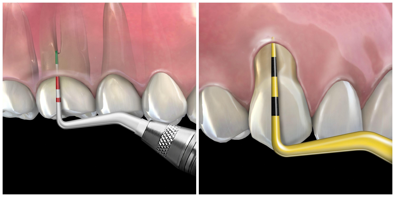 advanced implant course