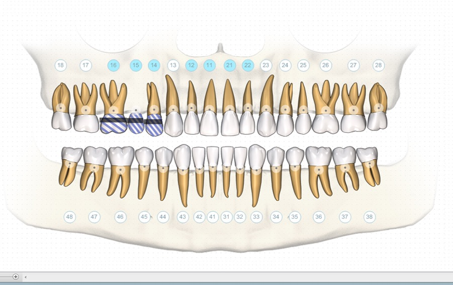 dental implant course online